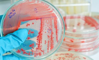 Cultures in a microbiology lab