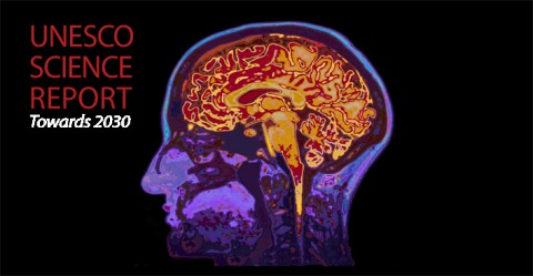 MRI Image Of Head Showing Brain.